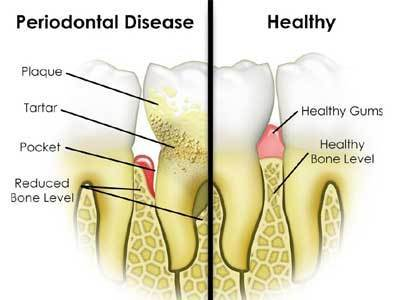 periodontal-care